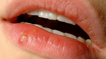 herpes labial modif rs