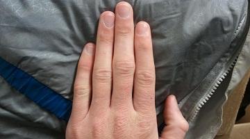 Trosnirea degetelor – periculoasă pentru articulații?